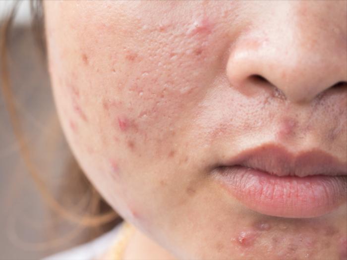 10 Kesalahan Saat Pake Skincare yang Bikin Jerawatan